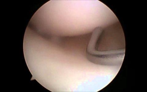 Φυσιολογική αρθροσκόπηση γόνατος